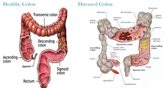 colon cleanse machine
